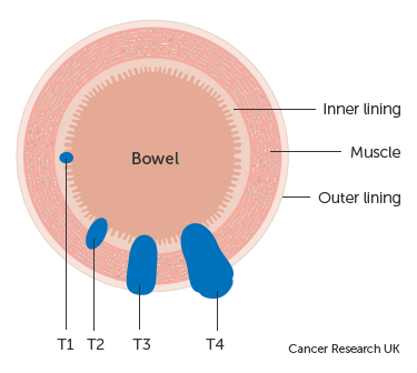 Cancer colon t1