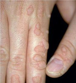 manifestările clinice ale giardiozei perdele rotunde