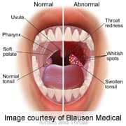 Hpv in mouth signs,