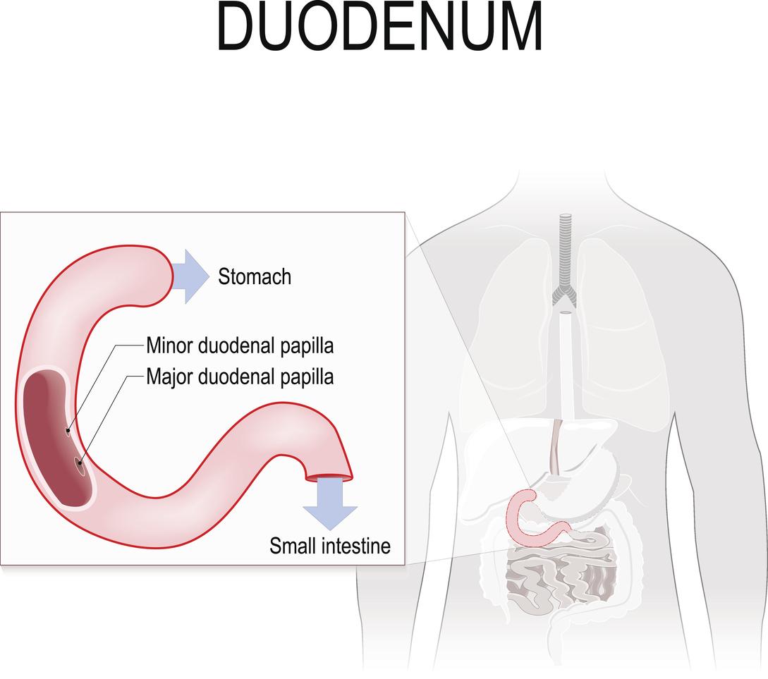 cancerul duodenal simptome kako se leci hpv virus kod zena