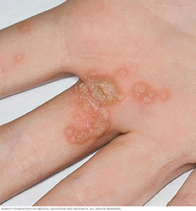 Hpv finger warts treatment