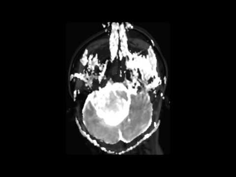 plexus papilloma jelentese tratamentul parazitului în tula