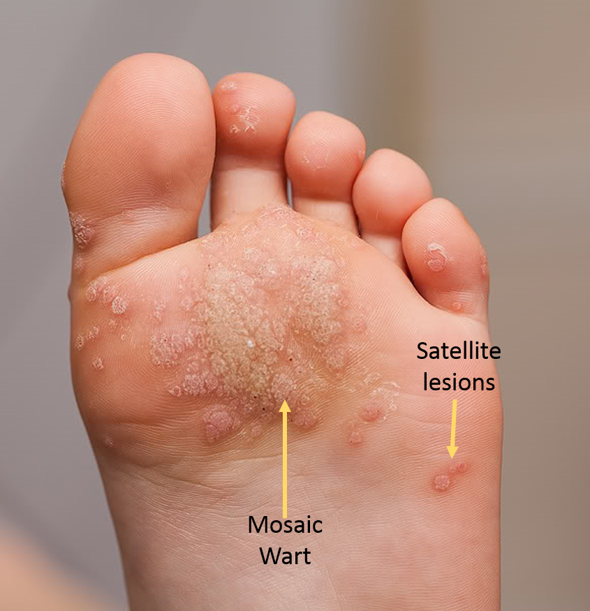 wart on his foot