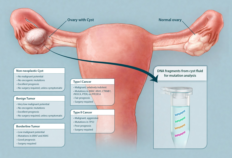Benign cancer cyst. Traducere