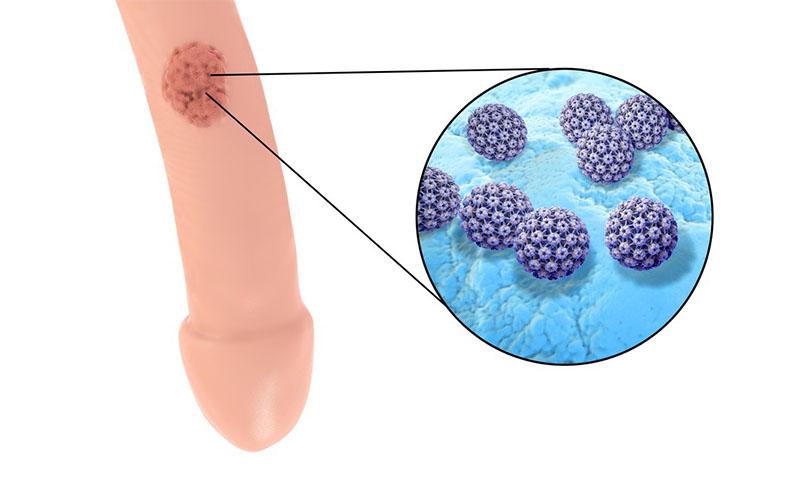 Lesioni da papilloma virus. viermi provoca pappilomovirus umane