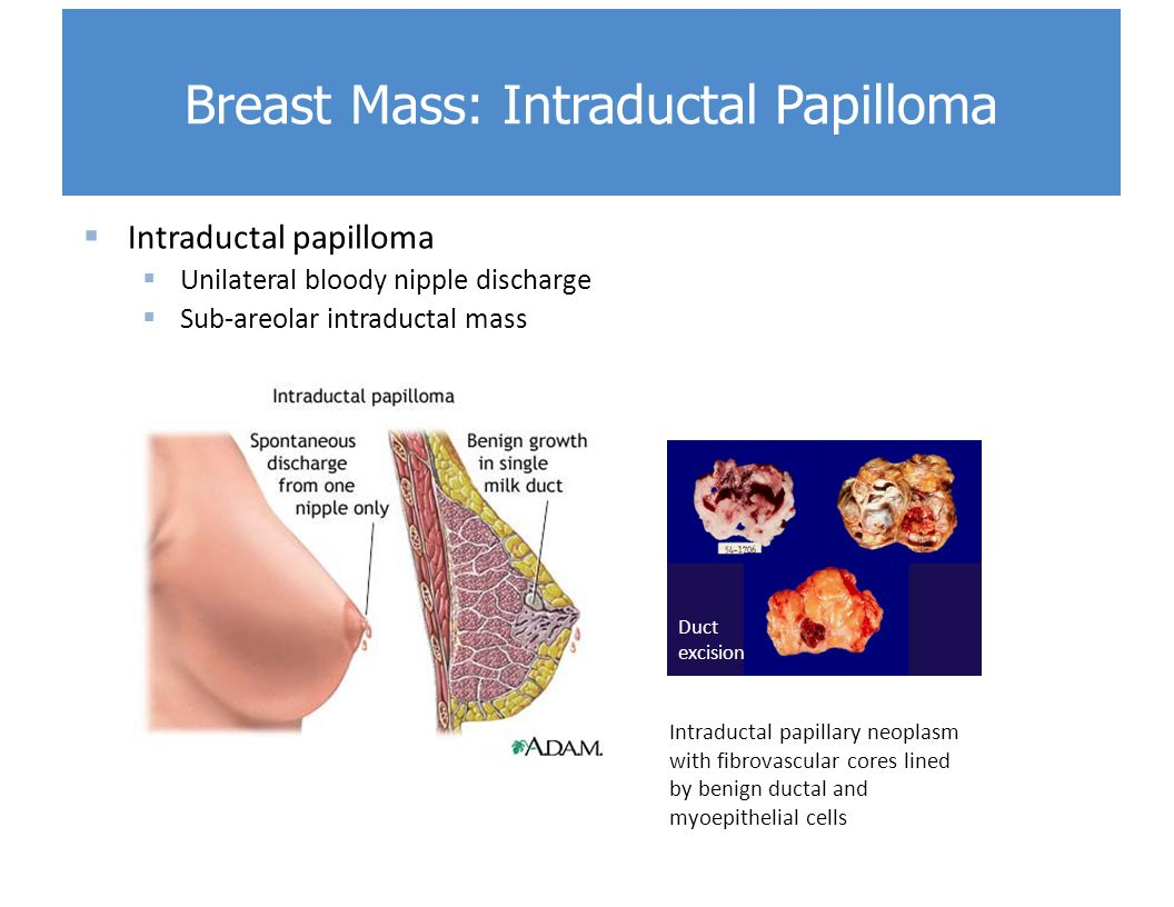 Intraductal papilloma cancer. Breast Pathology, Diagnosis by Needle Core Biopsy