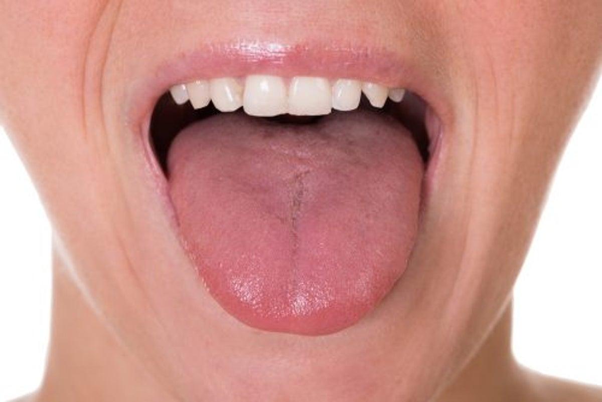 papillomavirus premiers symptomes