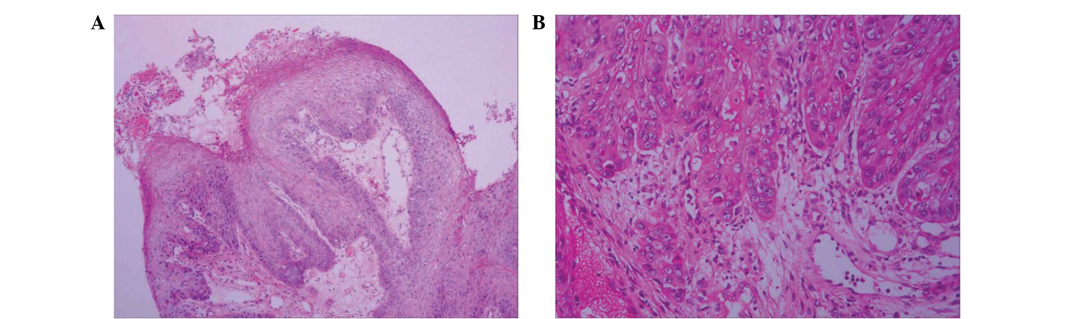 squamous papilloma with atypical cancer bucal resumen