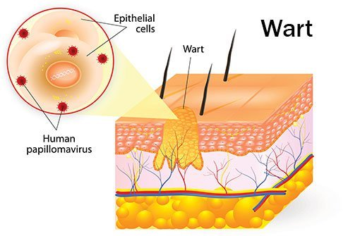 wart virus in blood de viermeren