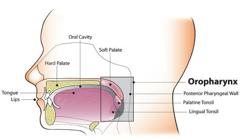 Hpv oropharyngeal cancer recurrence - transroute.ro