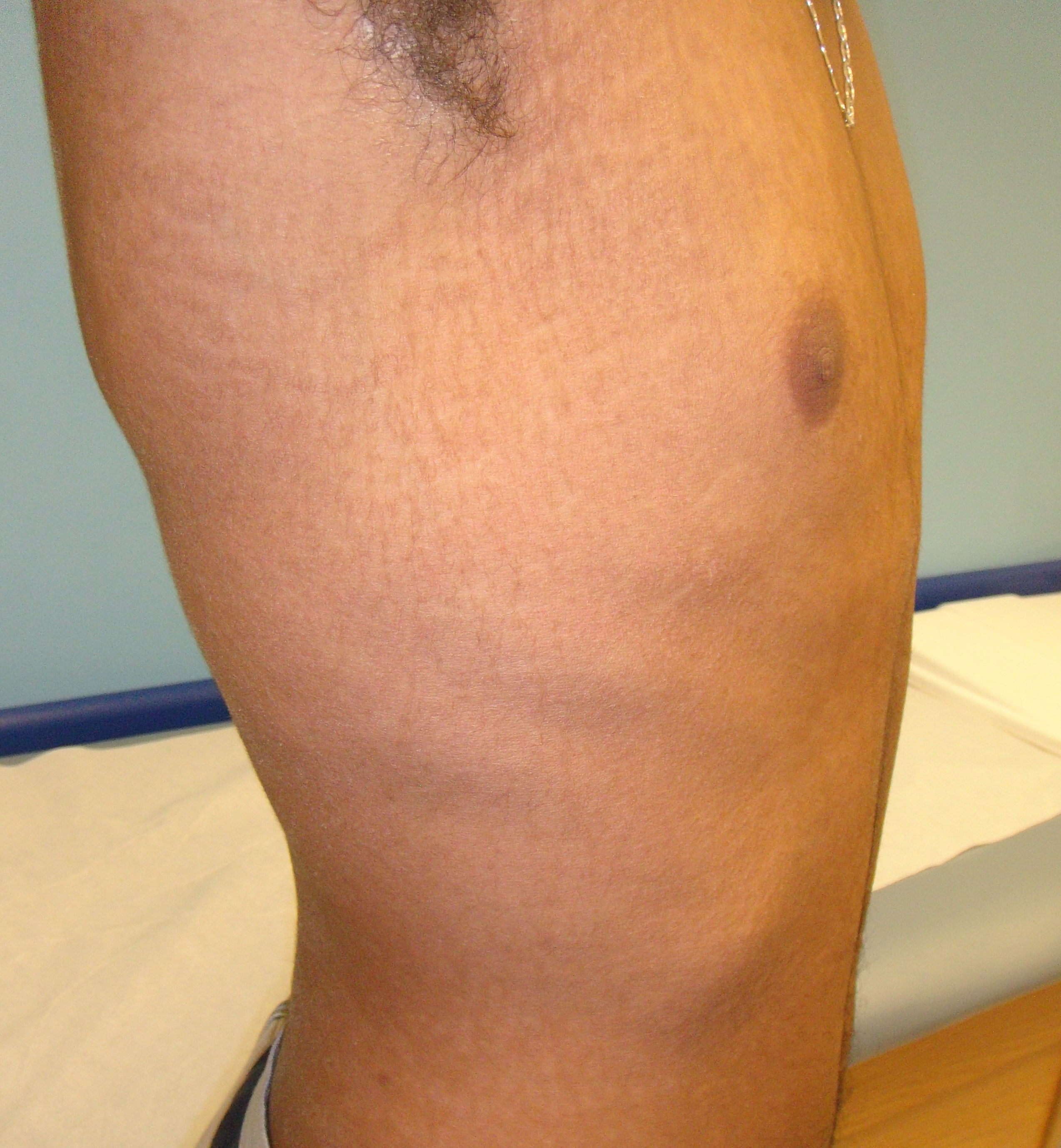 Papillomatosis skin causes, Cutaneous manifestations in pregnancy: Pre-existing skin diseases