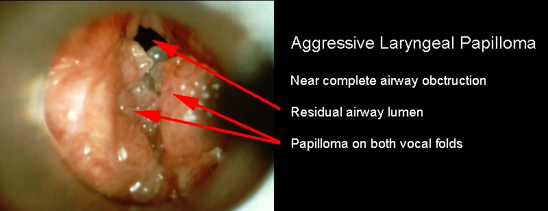 Hpv virus and laryngeal cancer - transroute.ro