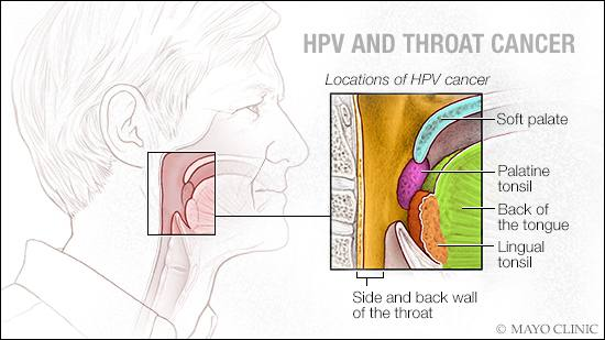 Hpv linked throat cancer symptoms - hhh | Cervical Cancer | Oral Sex