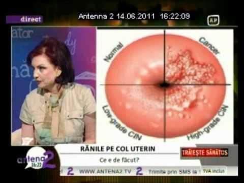 se vindeca cancerul de col