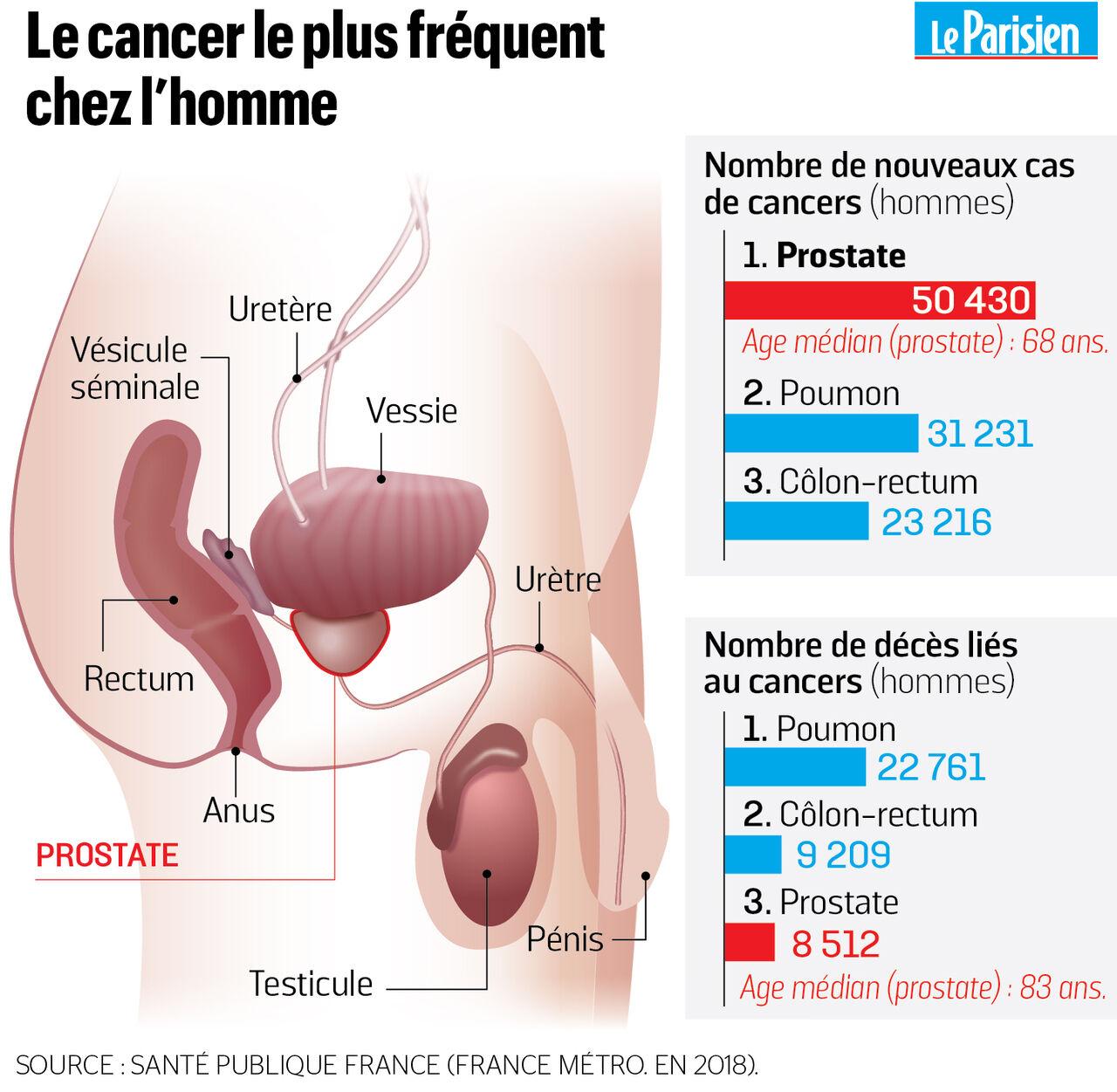 Funcționarea complexului de adenom de prostată afectează glanda prostatică mulțumesc
