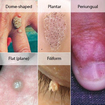Warts on hands and hpv