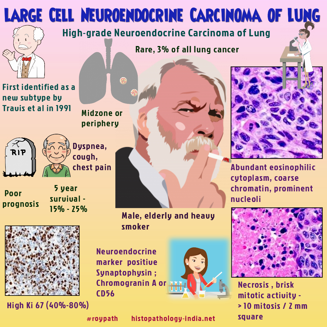 neuroendocrine cancer lungs prognosis hpv itching cream