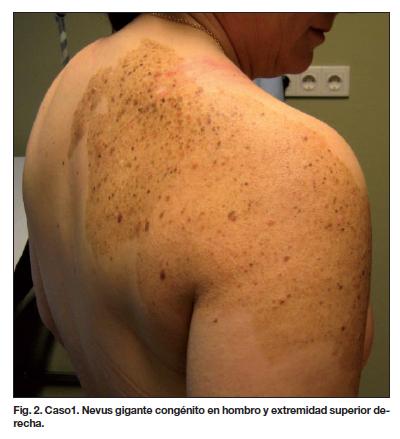 Sarcoma cancer cells -