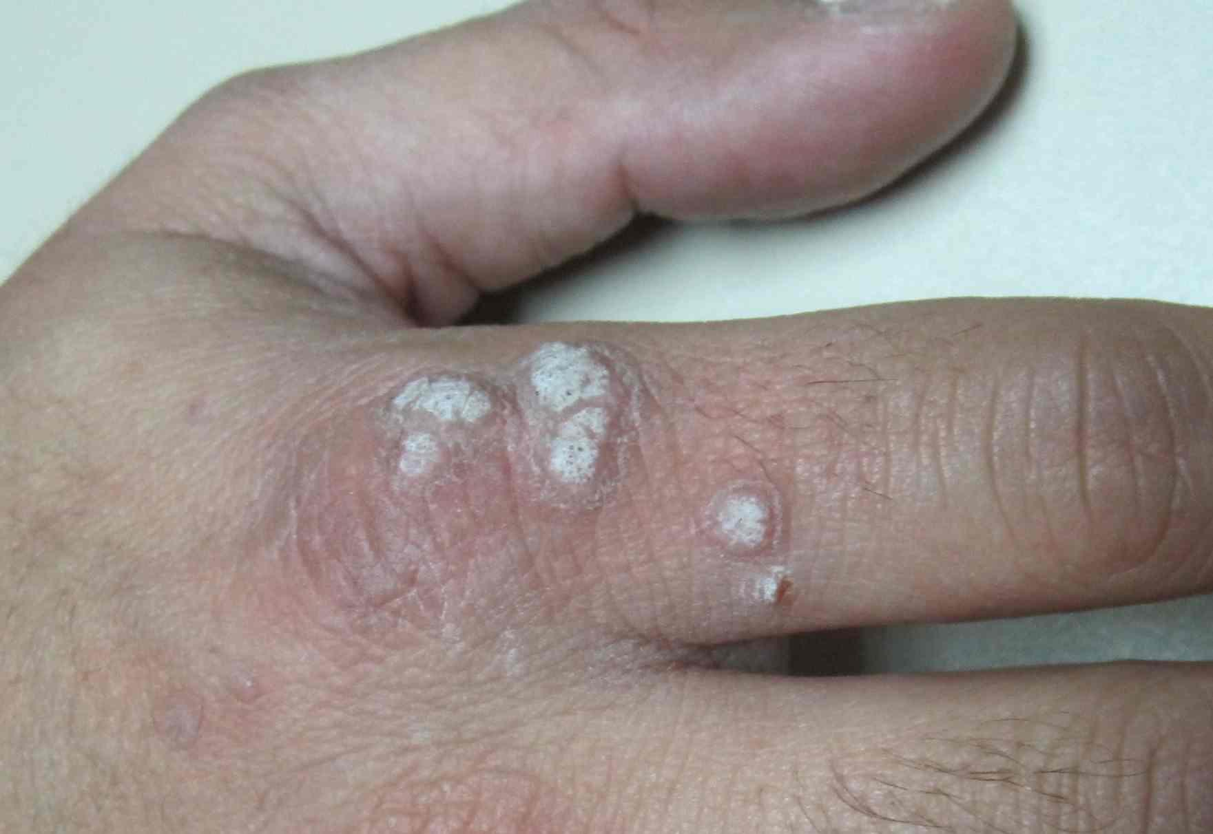 Papiloma en la piel imagenes. Hongos de Piel en Imagenes