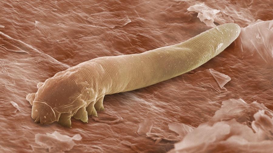 paraziti u nasem tijelu