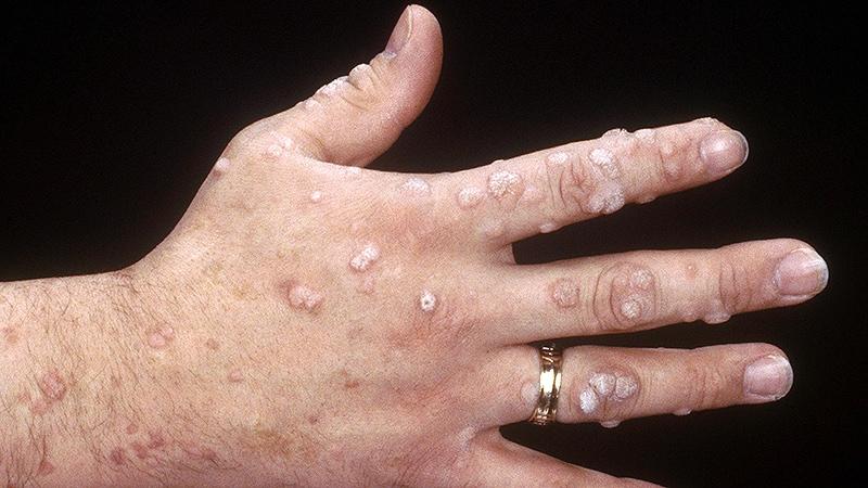 hpv warts medscape viermi de eliminare a viermilor medicinali