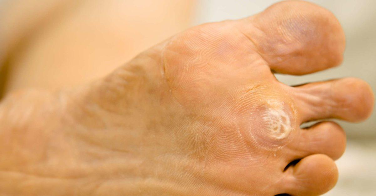 which symptom applies to human papillomavirus hpv) squamous papilloma back
