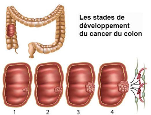 cancer colon femme