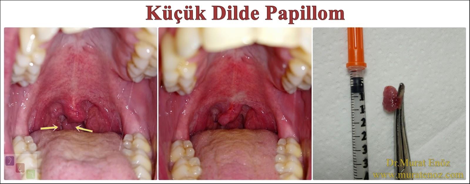 hpv swollen uvula