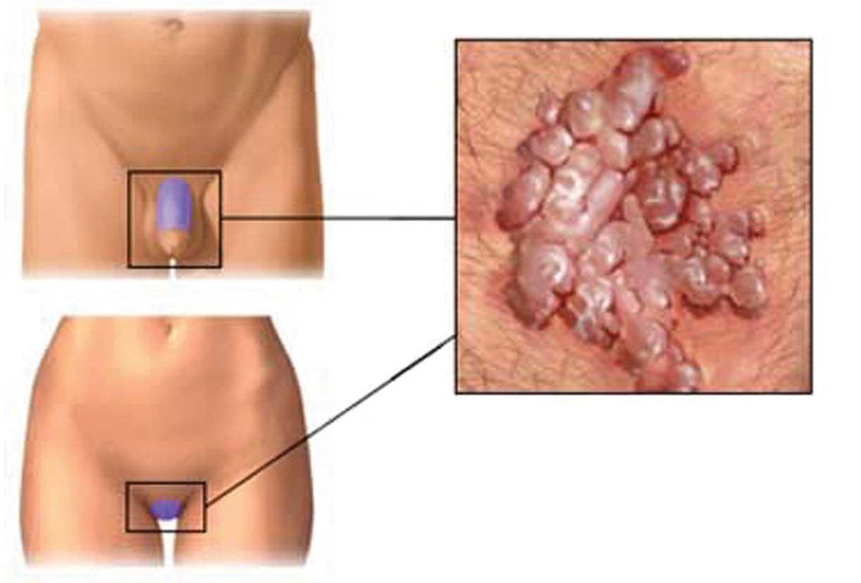 papilloma uomo virus que es papilomatosis vestibular