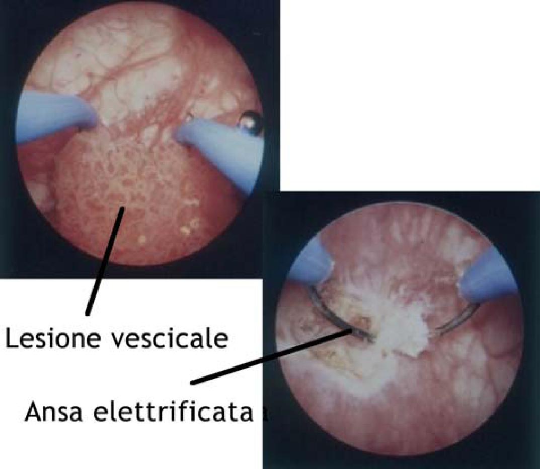 Prostata si polipi, Papilloma vescicale maligno