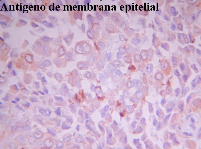 cancer sarcoma epitelioide