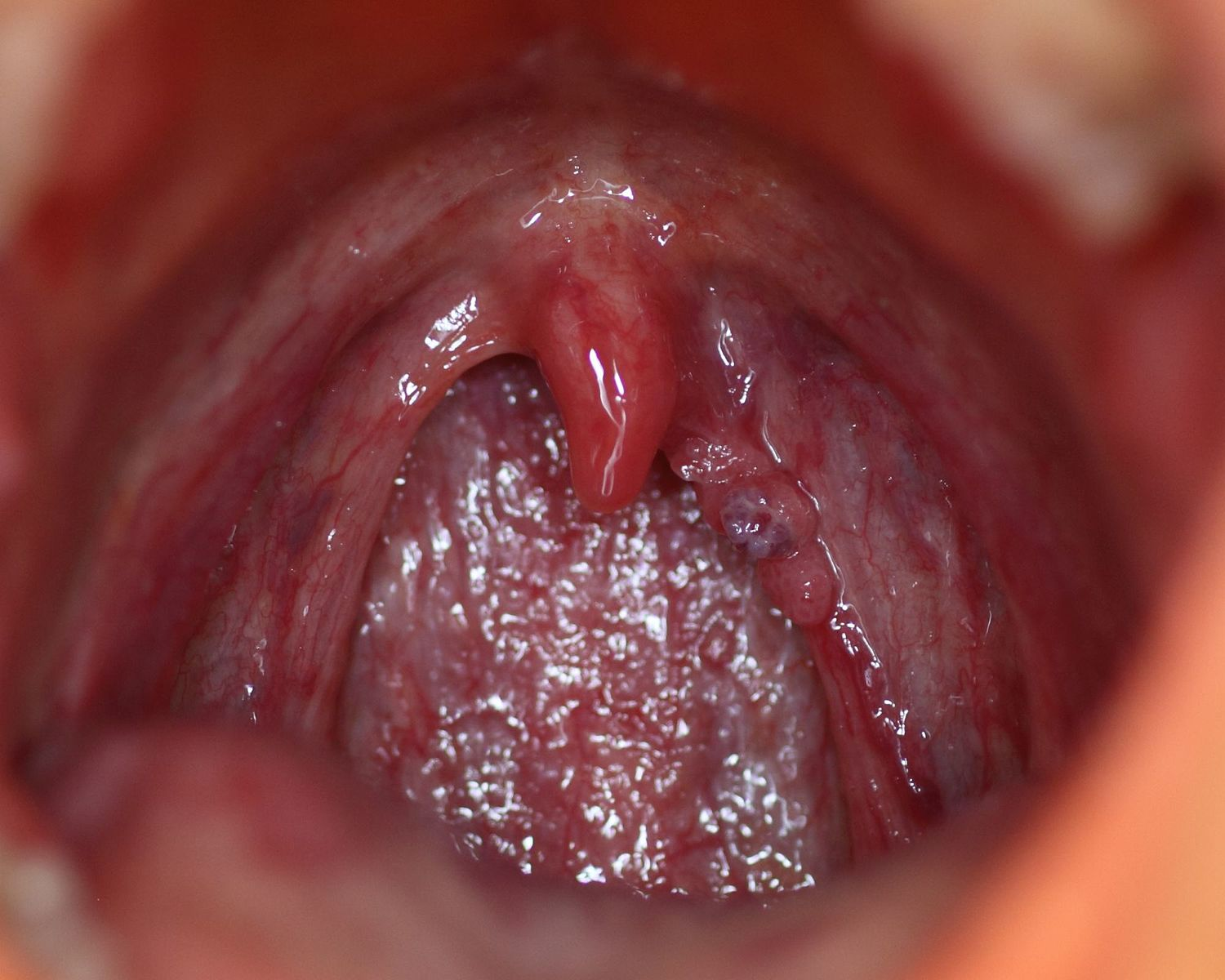 papilloma mouth cause