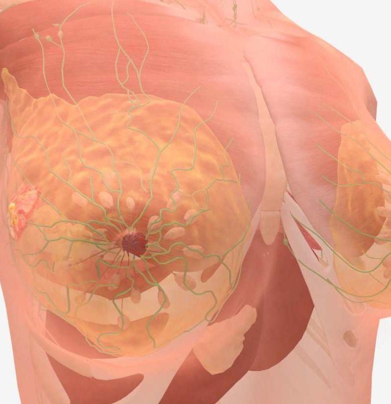 aggressive cancer called papillomavirus warze