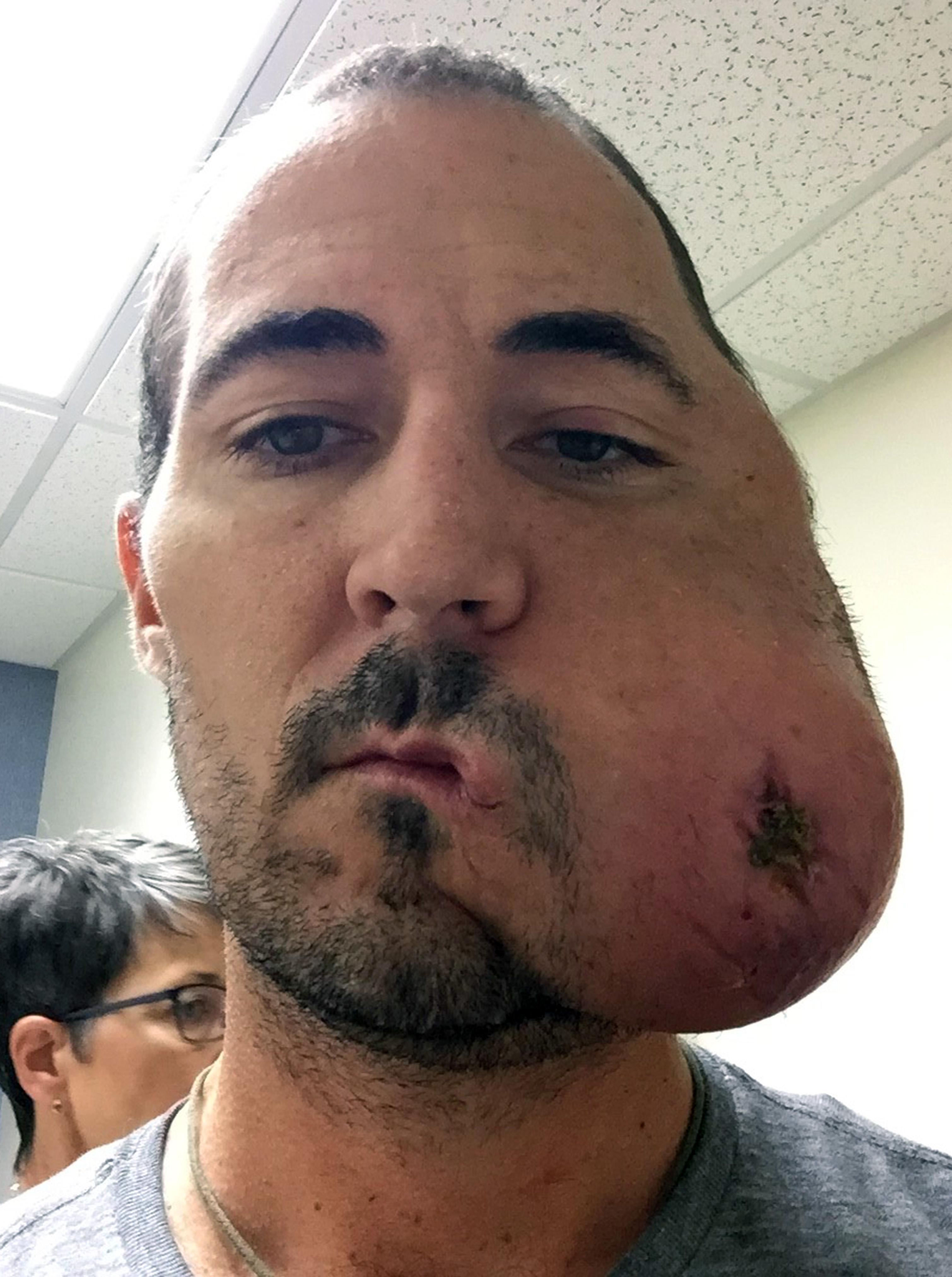 aggressive cancer of the face antihelmintic pentru oameni