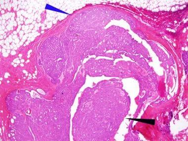 cancer abdominal la copii paraziți alimentari emergenți