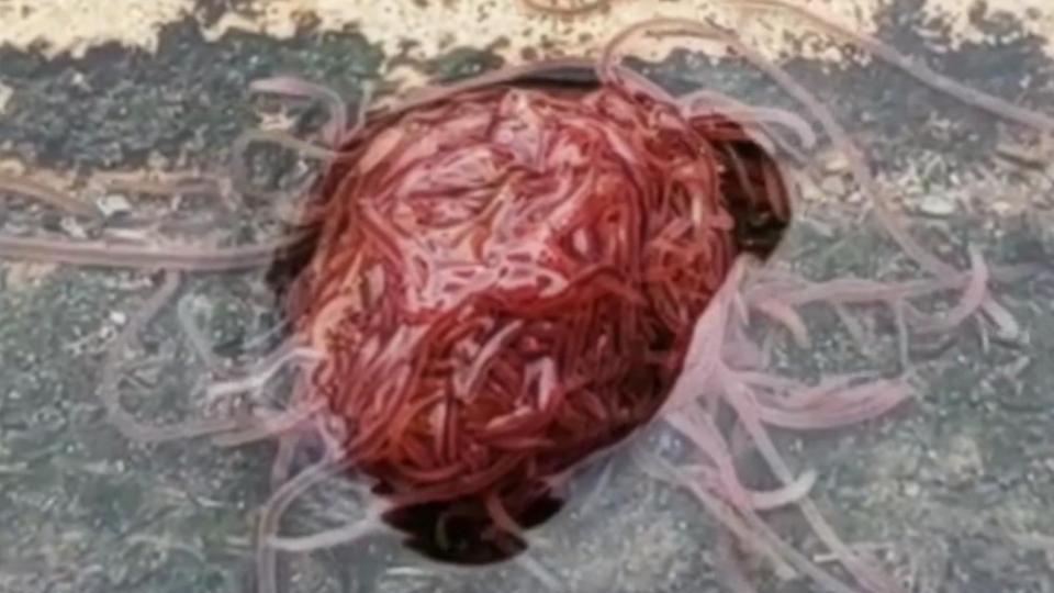 De ce au apărut viermi la Spitalul de Pediatrie Galați. Explicația DSP