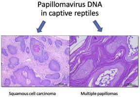papilloma vs neoplasm