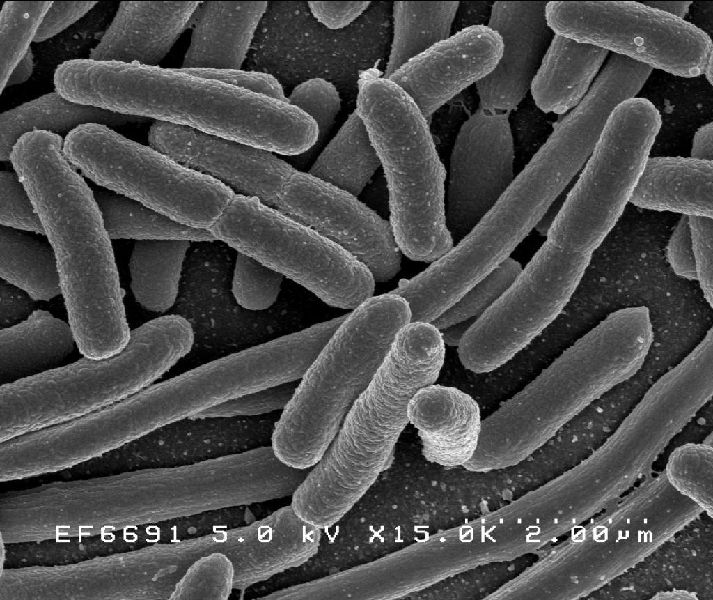 Cum poti face diferenta dintre o raceala cauzata de virusi si una cauzata de bacterii?