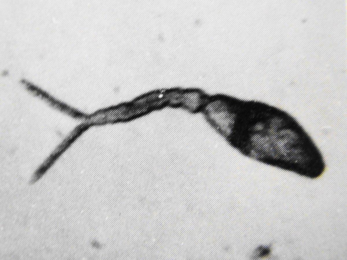 cheloo revelion bacterii marite in urina