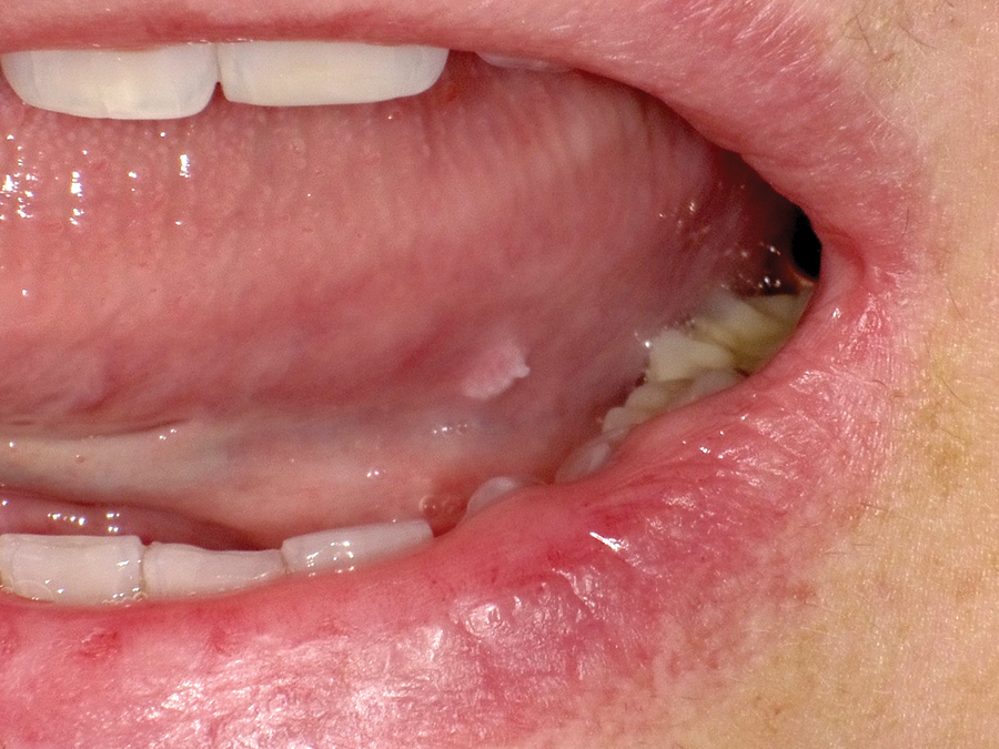 papilloma and mouth