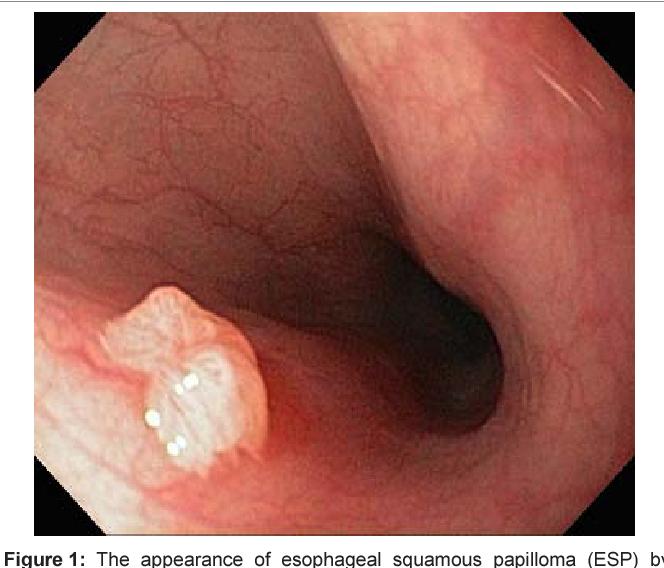 benign squamous papilloma of esophagus