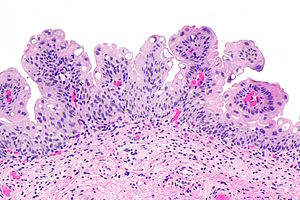 bladder urothelial papilloma virus del papiloma nic 1