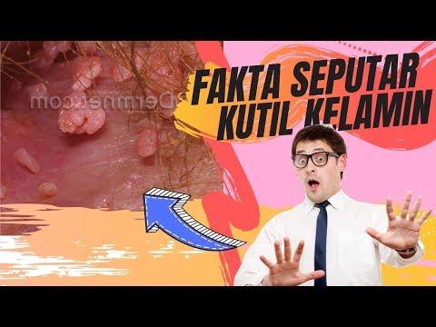 papilloma virus bruciature