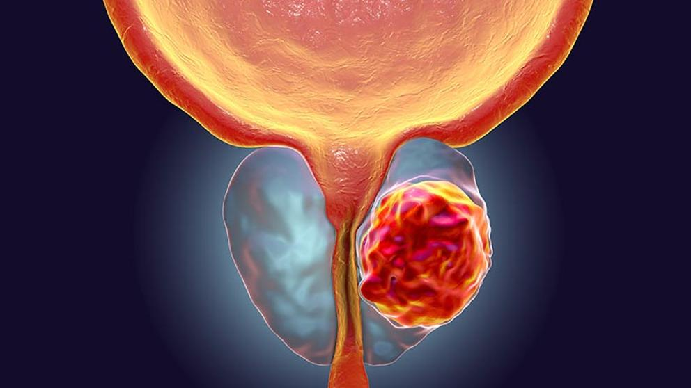 cancer de prostata avanzado detoxifierea fierei