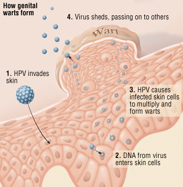 does hpv cause blood cancer