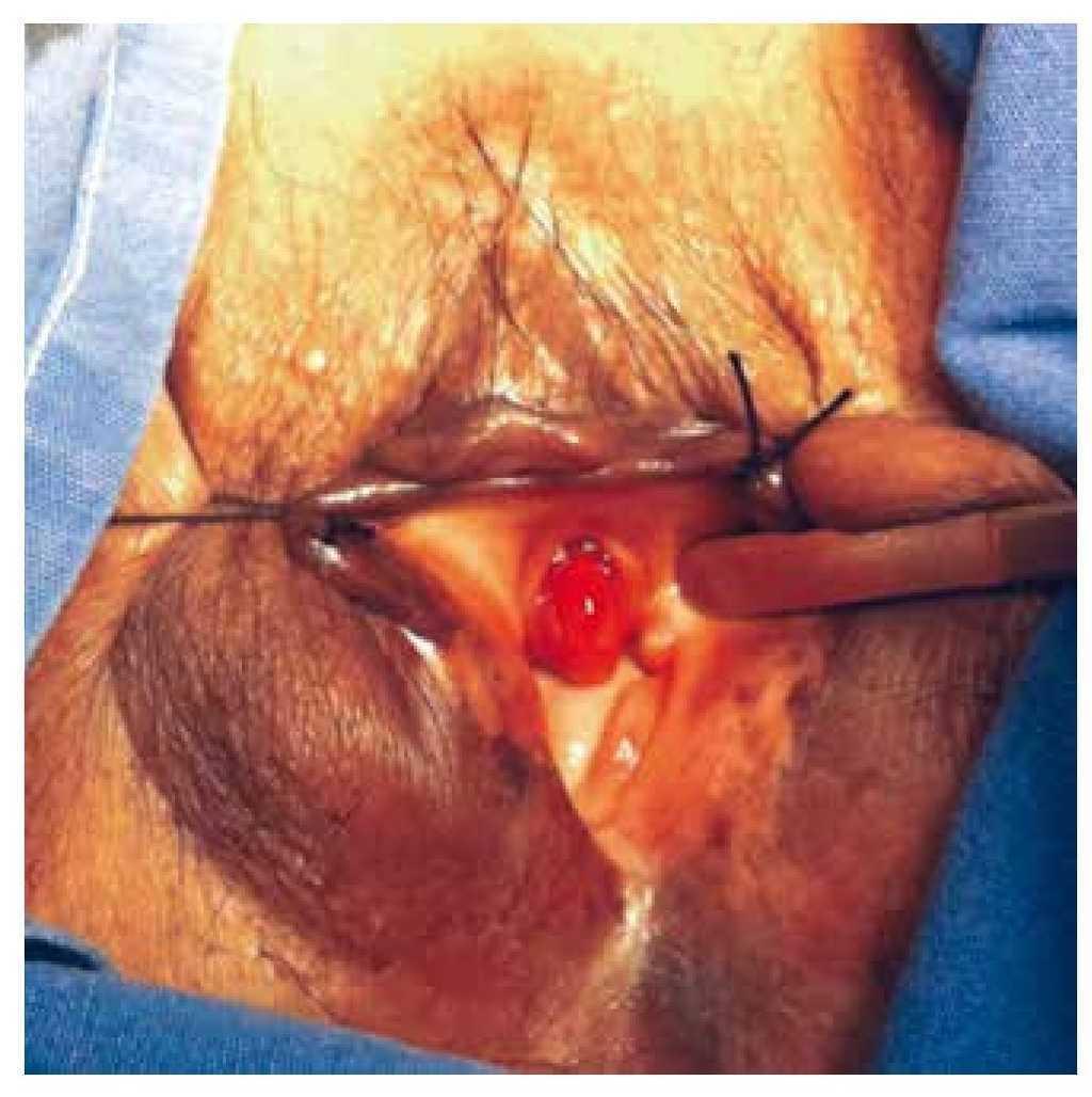 cancer uretral femenino