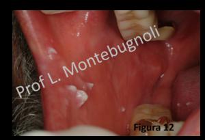 papilloma virus placche gola