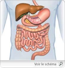 cancer colon gauche