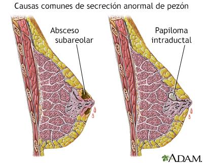 papilom ductal - Papiloma ductal de mama
