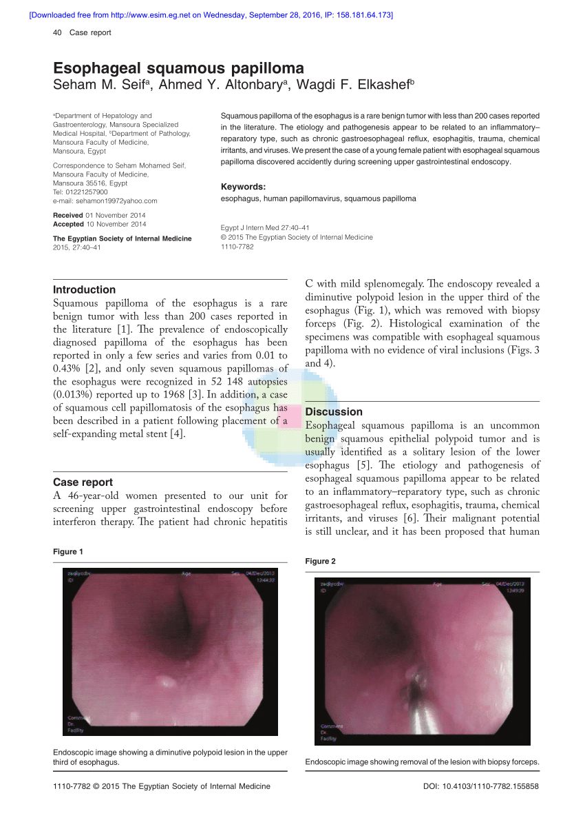 intraductal papilloma left icd 10